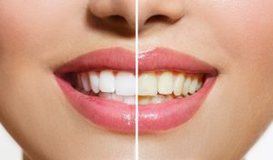 teeth whitening procedure KOR