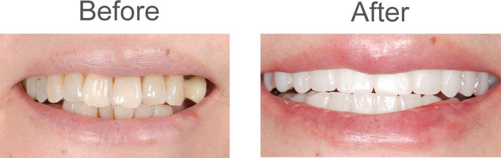 before and after photo of dental patient