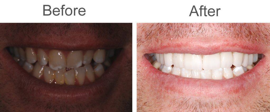 before and after same day teeth in San Diego