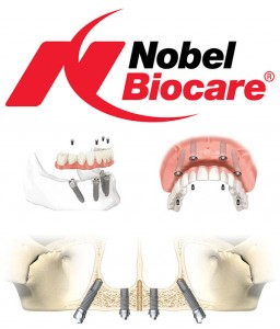 Lifetime Smiles uses only the highest quality Nobel Biocare products.